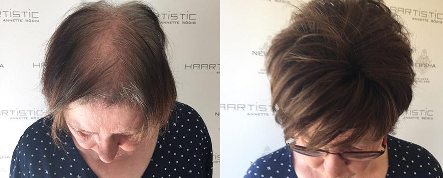 Bei schütteren Haar und Haarausfall hilft der spezialisierte Friseursalon